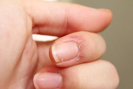 С шелушением и сухостью кожи нужно бороться сразу