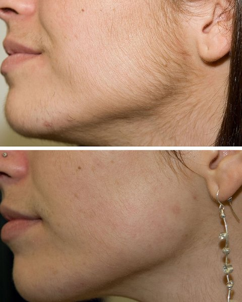 Результаты до и после процедуры удаления волос диодным лазером.
