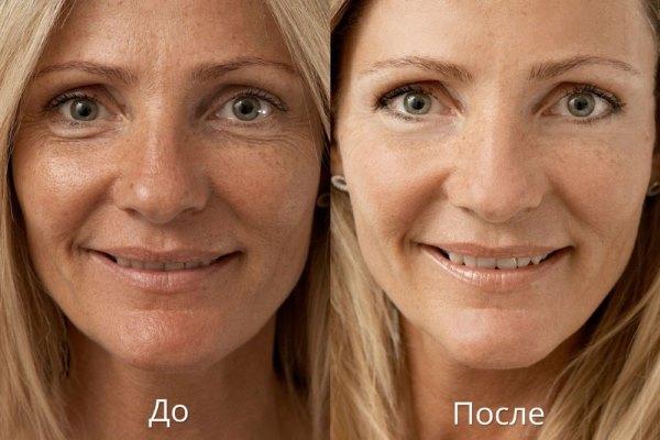 """Фото до и после использования крема """"Лора""""."""