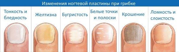 Изменения ногтевой пластины при грибке ногтей.