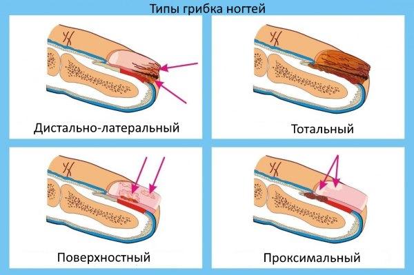 Типы грибка ногтей.