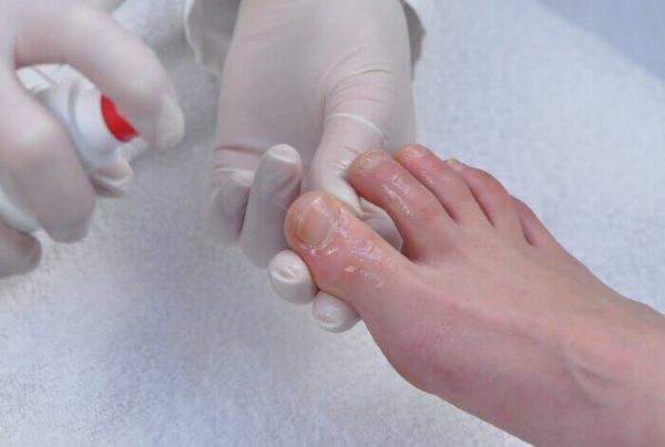 Девушке лечат грибок ногтей.