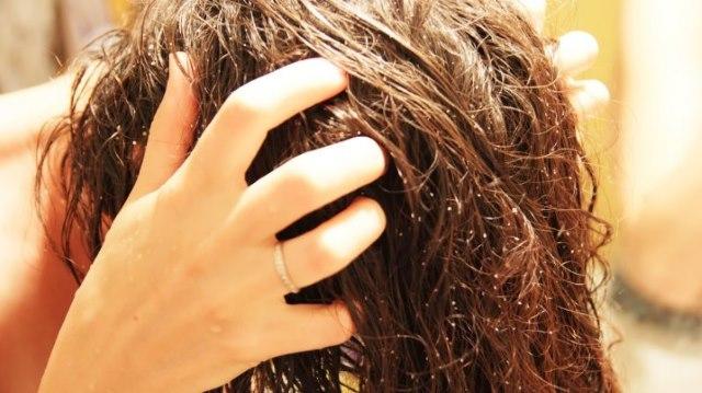 Причины боли кожи головы, если трогаешь волосы