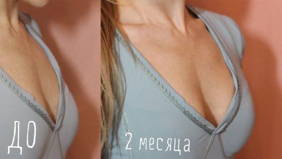 Результат упражнений по увеличению груди