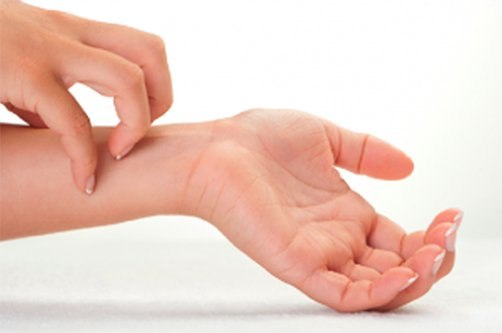 Покраснение и зуд между пальцами рук