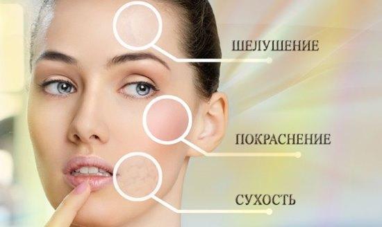 Показания для ретиноевого пилинга