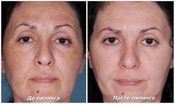 Фото до и после пилинга.
