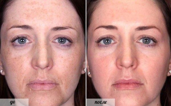 Фото до и после применения желатиновой маски.