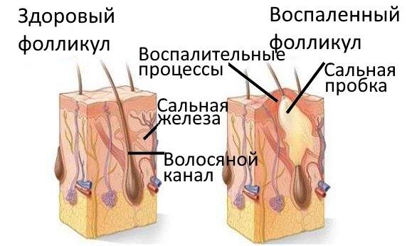 Здоровый и воспаленный фолликулы.