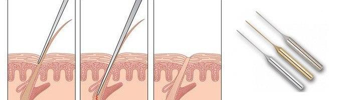 элос эпиляция в интимных зонах