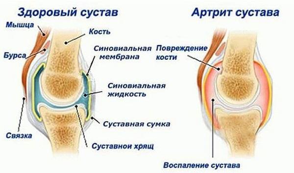 Если ноет колено в состоянии покоя. Лечение коленных суставов