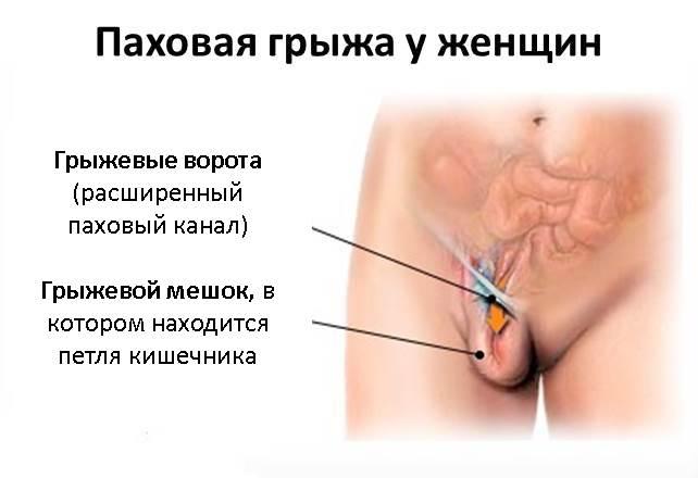Колит в паху при беременности