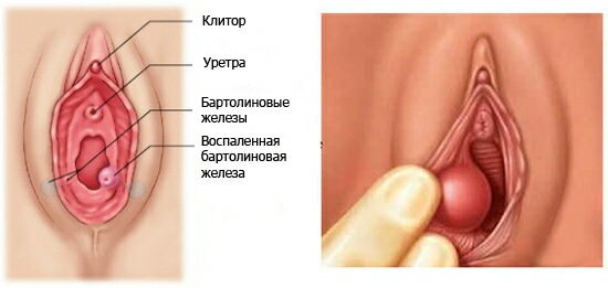 Шишка в паху справа у женщины