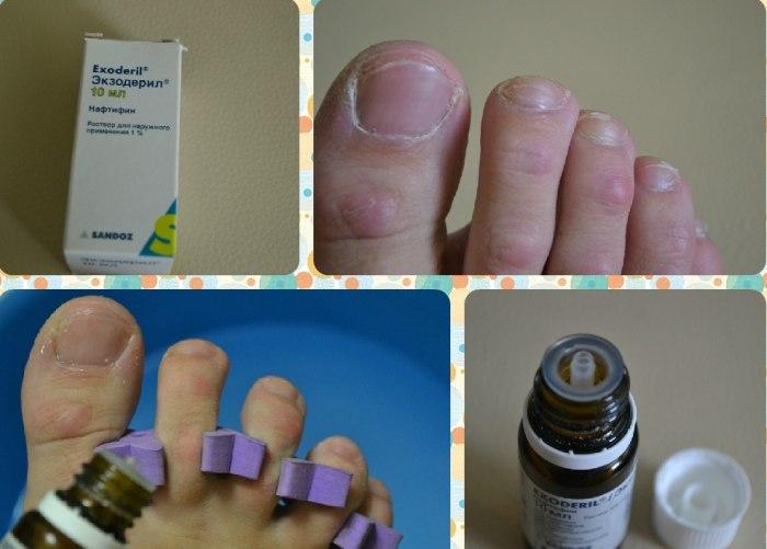 Препарат от грибка ногтей экзодерил