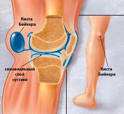 Болит коленный сустав сзади лечение при разрыве связок коленного сустава