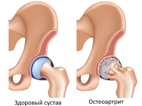 Боли в тазобедренном суставе в левом