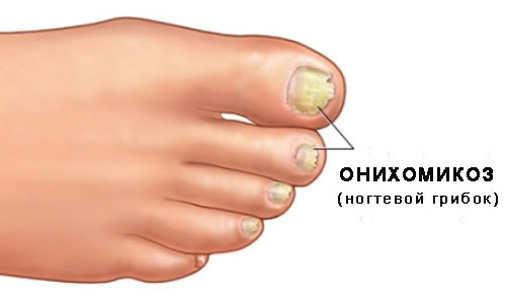 Лечение ногтей ibx гель