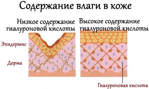 Содержание влаги в коже с разным содержанием гиалуроновой кислоты.
