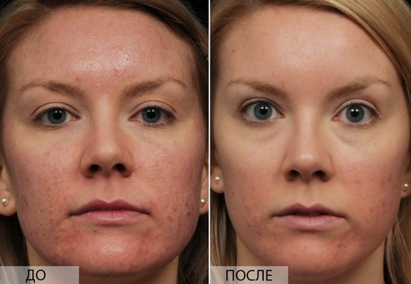Пилинг кожи лица Хилак Форте (Hylak forte) + Отзывы