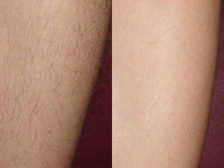 Элос эпиляция: эффективное удаление волос. Отзывы, Фото до и после процедуры