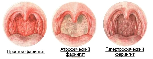 Тонзиллит  лечение болезни Симптомы и профилактика