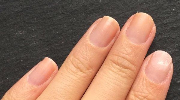 Искривление ногтей на руках причины