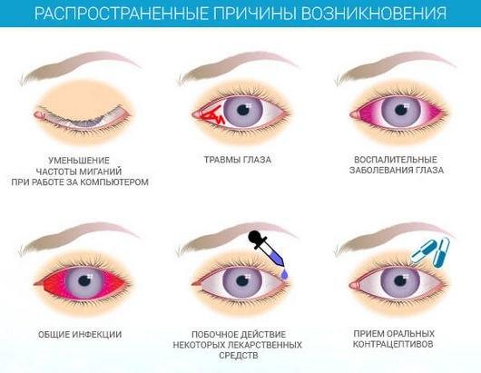 сухость глаза