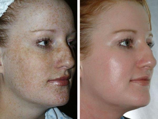 Фото до и после чистки.
