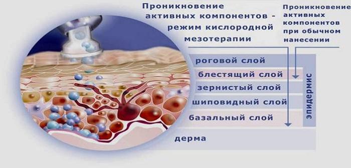 Мезотерапия лица – что это. Аппаратная, фракционная, безинъекционная. Фото до и после