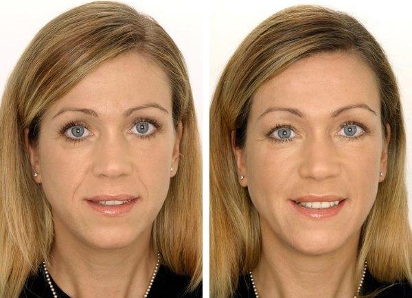 Фото до и после регулярной омолаживающей гимнастики для лица.