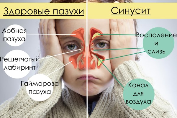 Сравнение здоровых пазух и при синусите.