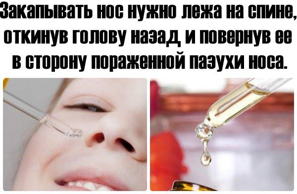 Инструкция по закапыванию носа.