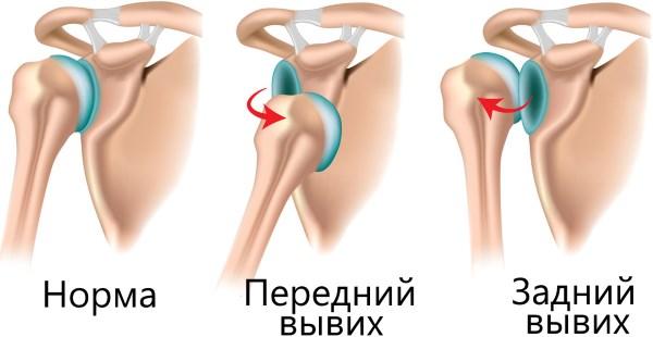 Ушиб плечевого сустава сколько заживает челюстные суставы и брекеты