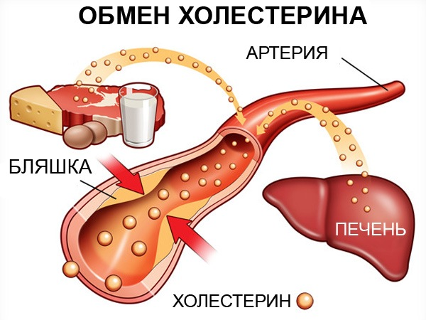 Сок картофеля при атеросклерозе