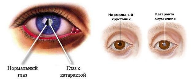 Гидрокортизоновая мазь. Инструкция по применению, действие на глаза