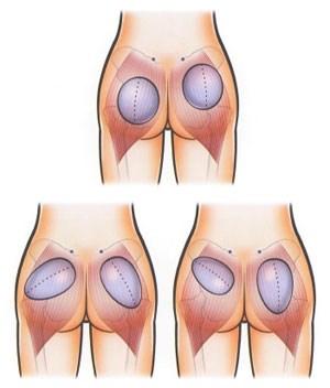 Глютеопластика – виды операции по увеличению ягодиц, эффективность, результаты. Фото до и после