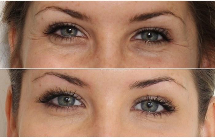 Ксеомин - отзывы, фото до и после уколов красоты. Результаты