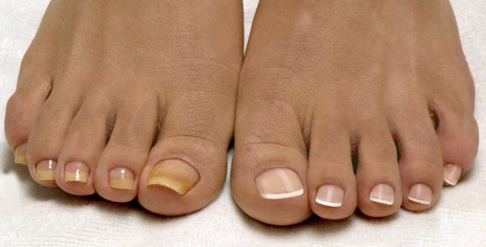 Как вылечить хронический грибок на ногтях ног