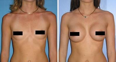 Липофилинг грудных желез. Отзывы. Как проходит процедура