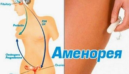 Можно ли забеременеть во время лактации. Как предохраняться во время кормления грудью