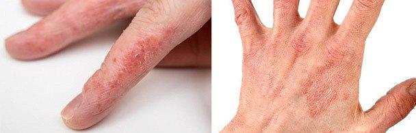 Почему облазит кожа на пальцах рук: причины, способы лечения, профилактика