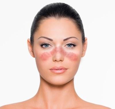 Пятна на лице красного цвета. Шелушатся участки кожи. Лечение кожи