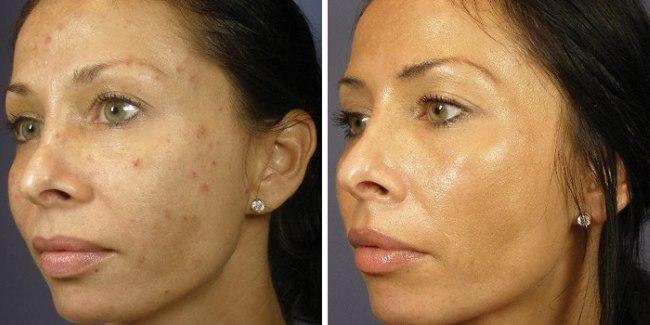 Ретиноевая мазь от морщин для омоложения кожи лица. Отзывы