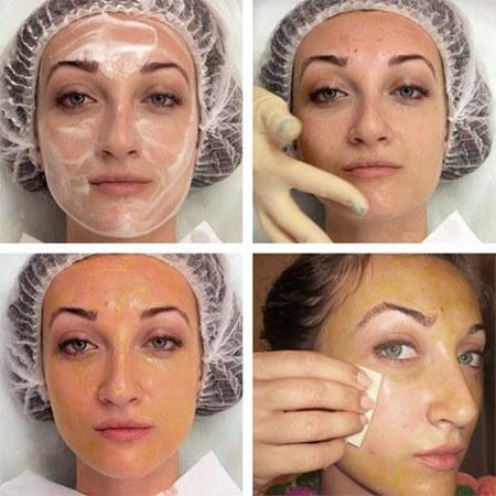 Ретиноловый (желтый) пилинг для кожи лица. Эффективность, фото до и после