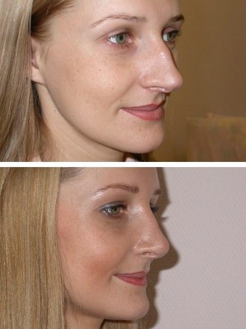 Ринопластика носа - что это такое, цена, фото до и после