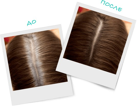 Спрей-краска для закрашивания корней волос Лореаль. Отзывы