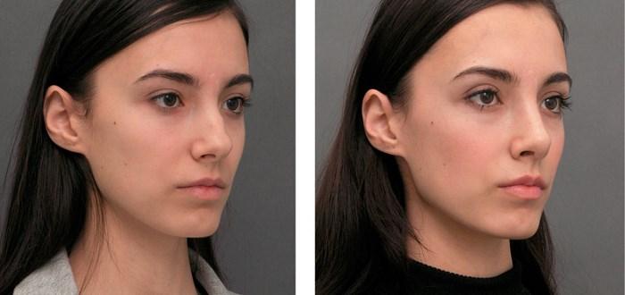 Безоперационная ринопластика коррекция носа