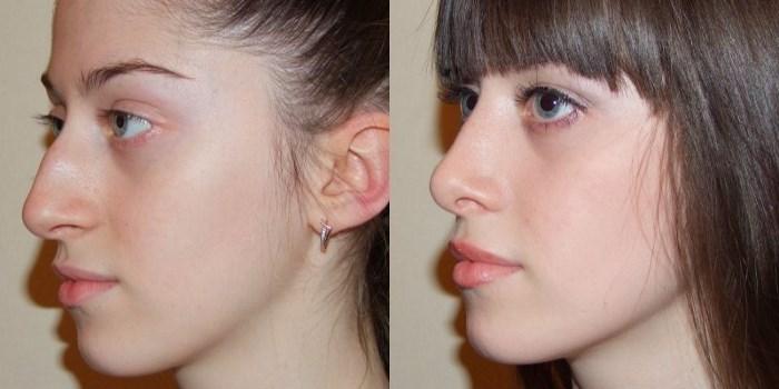 Как избавится от морщин на носу