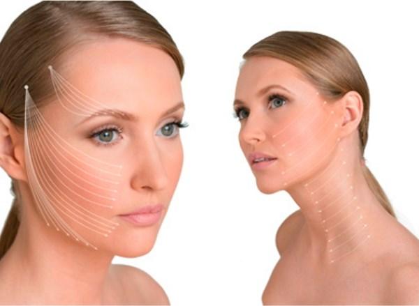 Косметические нити для подтяжки лица. Последствия, возможные побочные эффекты
