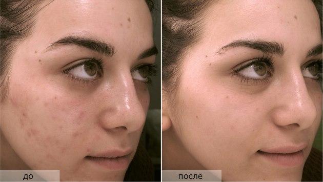 Миндальный пилинг для лица - что это такое, результаты, фото до и после. Отзывы